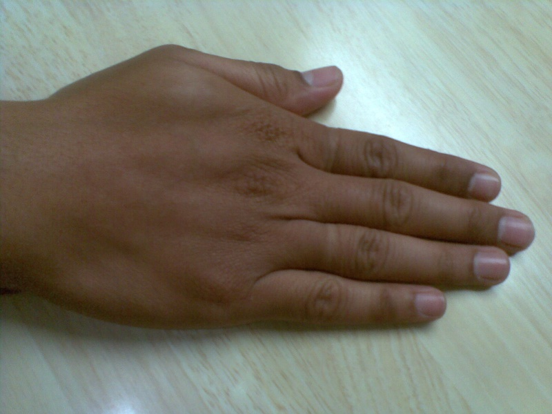 Kindly analyse my hand Righth12