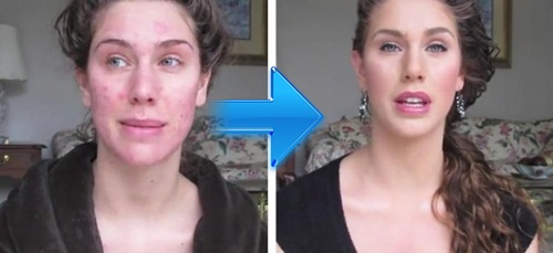The acne model  Acne_m10
