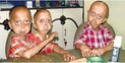 Hutchinson Gilford Progeria and Palmistry ! 2009-110