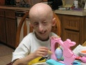 Hutchinson Gilford Progeria and Palmistry ! Proger10