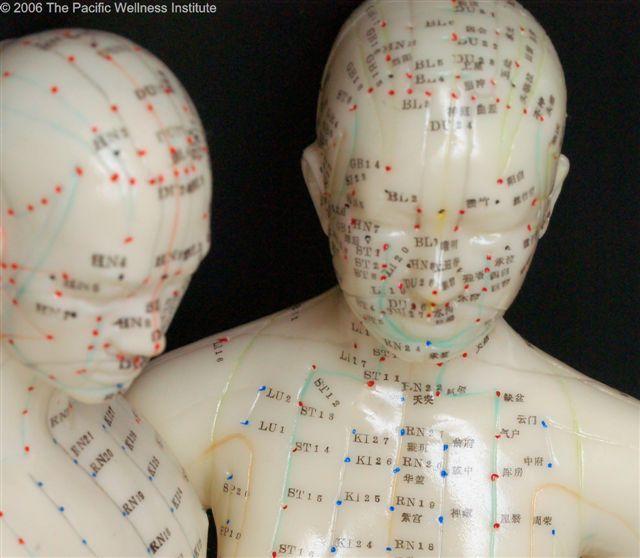 Les dangers de l'acupuncture - Une autre réplique aux propos de Vincent Detarle ! Fertil10