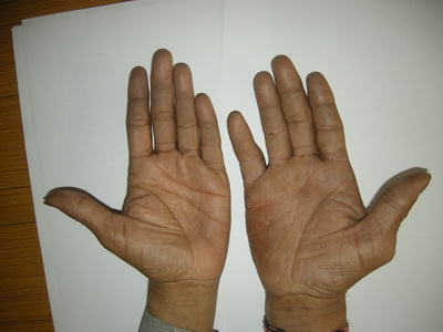 What is a signification if the man is having different type of hands?  Palmwe10