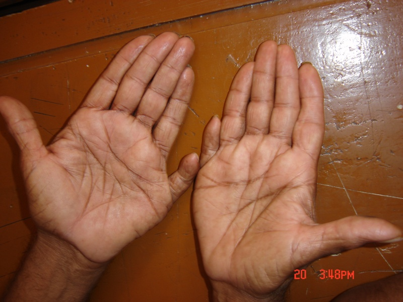 Man with 12 fingers and toes - Polydactyly Six_fi10