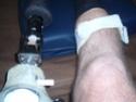 hauteur du genou de la prothèse P8100016