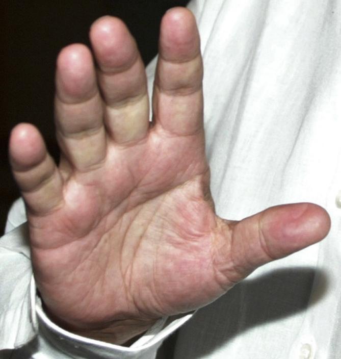Carlos Slim Hand-s11