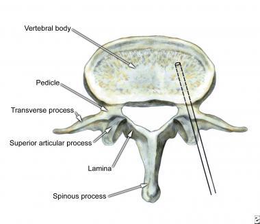 Vertebroplastia percutânea por injeção de cimento em vértebra (3) T213