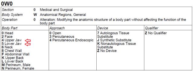 Distração osteogénica X110