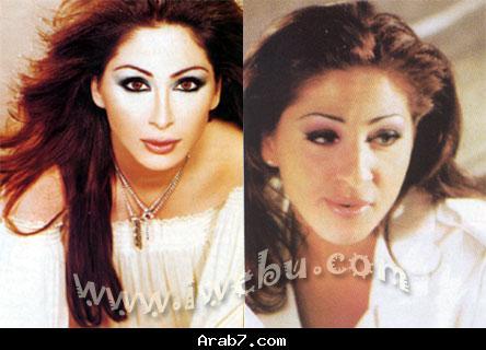 صور الفنانات العربيات قبل عمليات التجميل 17jn110