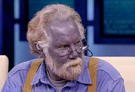 الرجل لذي تحول لونه الى ازرق....انها حقيقه وليست خيال...... Z310