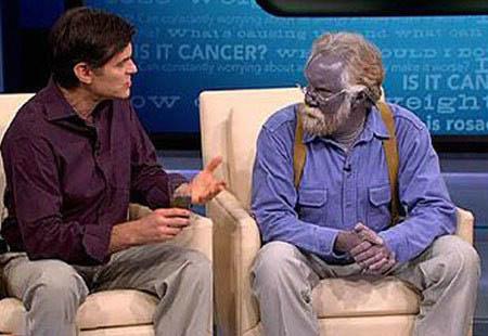الرجل لذي تحول لونه الى ازرق....انها حقيقه وليست خيال...... Z410