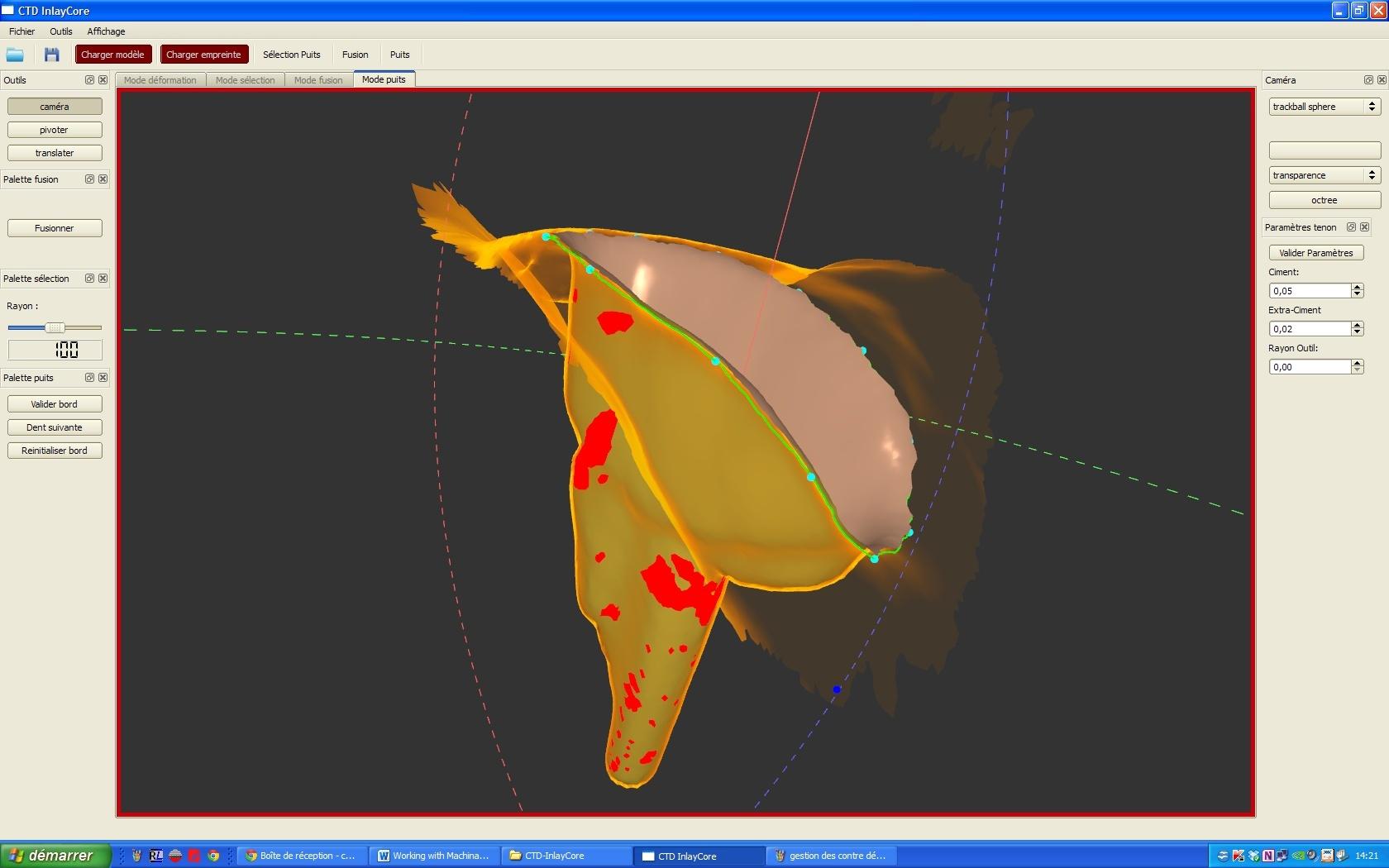 CTD Inlay Core Gestio10