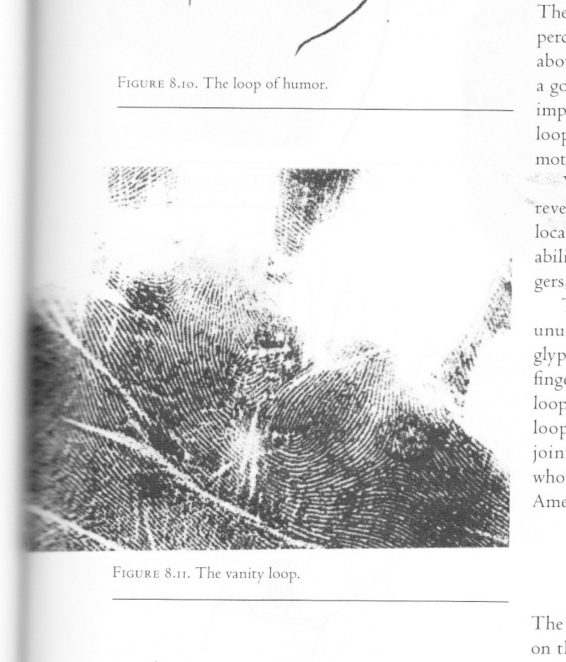 ARTICLE - Fingerprints & Palmar Dermatoglyphics Img10
