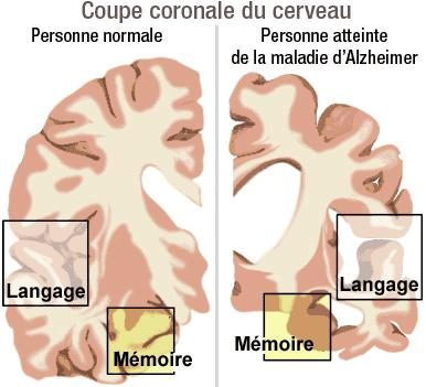 5 maladies qui mobilisent la recherche Alzhei11