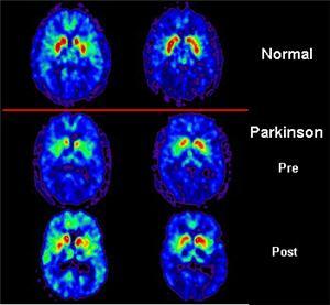 5 maladies qui mobilisent la recherche Parkin10