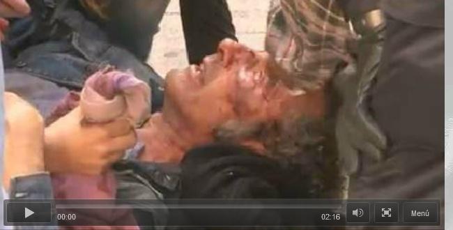Vídeo que desenmascara las mentiras de la policía murciana: fueron ellos quienes desfiguraron la cara a este ciudadano Polic10