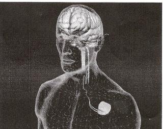 le stimulateur nerf vague Stimul11