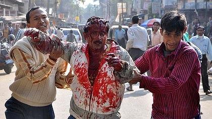 [India] Leopardo arrancó el cuero cabelludo a un hombre 3110