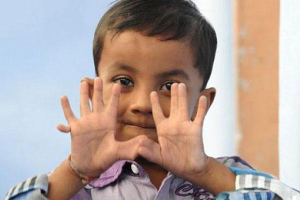 Niño tiene 25 dedos y es celebridad en su pueblo. Ff310