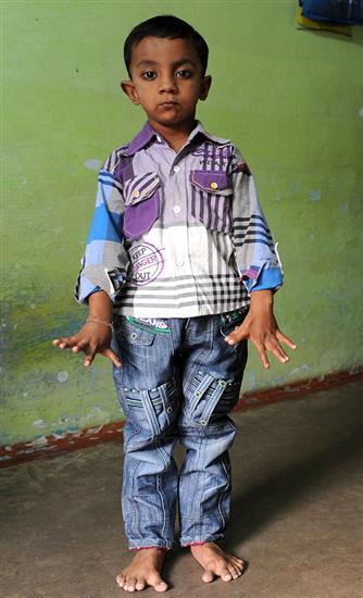 Niño tiene 25 dedos y es celebridad en su pueblo. Ff410