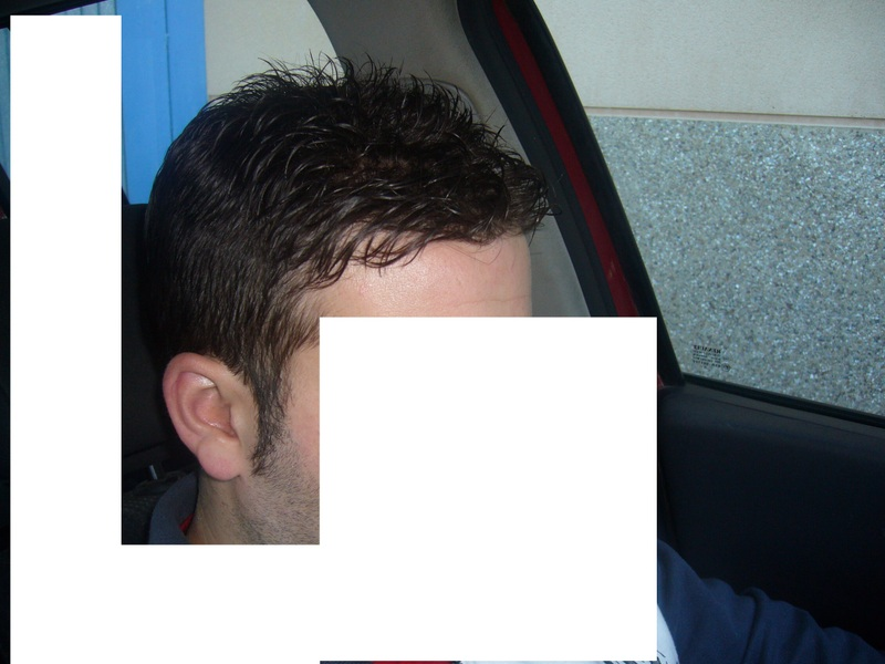 Protesi di capelli e reinfoltimenti non chirugici Newlacecu. Galleria fotografica! 67059010