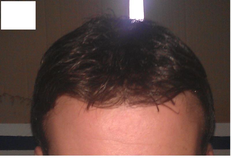Protesi di capelli e reinfoltimenti non chirugici Newlacecu. Galleria fotografica! 80685910