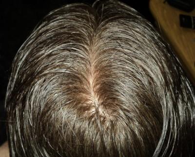 Protesi di capelli e reinfoltimenti non chirugici Newlacecu. Galleria fotografica! Dsc07310