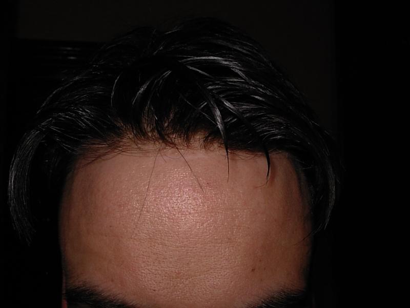 Protesi di capelli e reinfoltimenti non chirugici Newlacecu. Galleria fotografica! Fe78f910