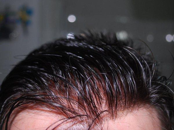 Protesi di capelli e reinfoltimenti non chirugici Newlacecu. Galleria fotografica! Front-10