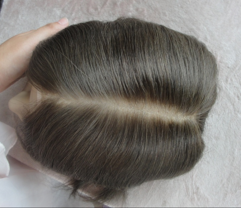 Protesi di capelli e reinfoltimenti non chirugici Newlacecu. Galleria fotografica! Santar10