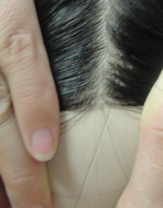 Protesi di capelli e reinfoltimenti non chirugici Newlacecu. Galleria fotografica! Xf116010