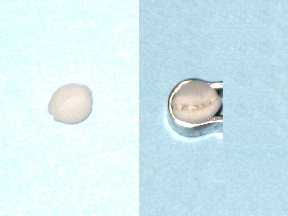 Cleotrivia globosa cf. Ovulid10