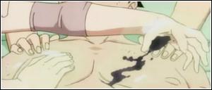 Téchniques de Type Irou # Médicale # ~ Ouver à certain rôliste seulement. ~ Poison10
