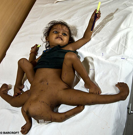 Baby Born with Two Faces; Worshipped as God 8_limb11