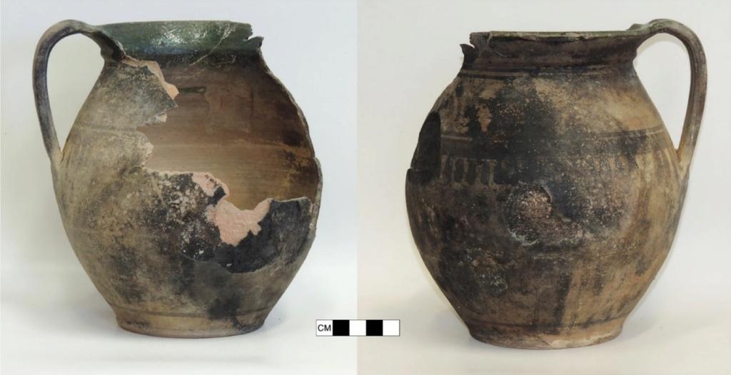 Una moneda momificó la mano de un bebé 311