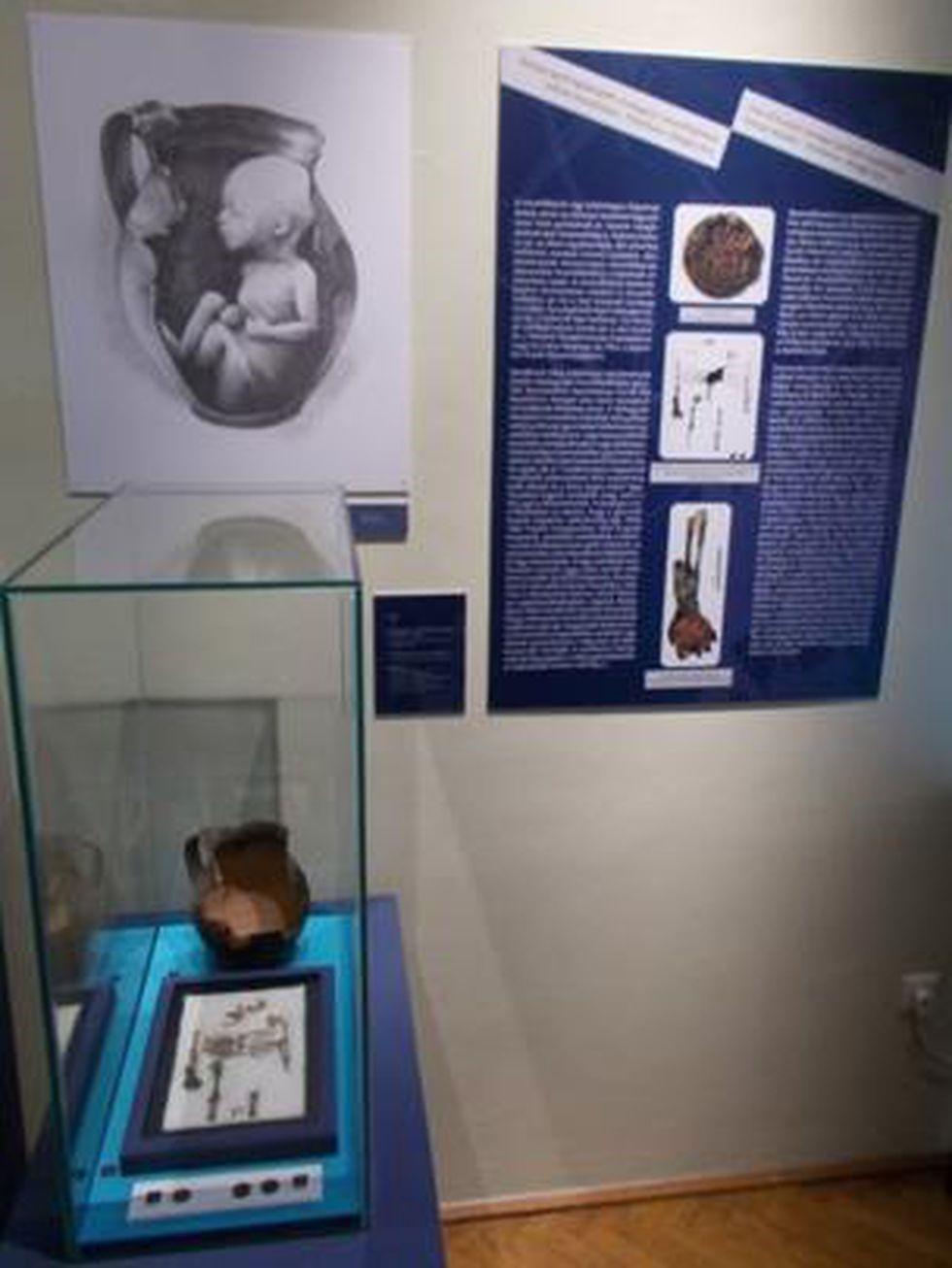 Una moneda momificó la mano de un bebé 411