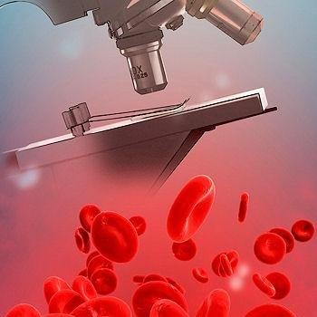 Развитие психических заболеваний можно предсказать по анализу крови A40