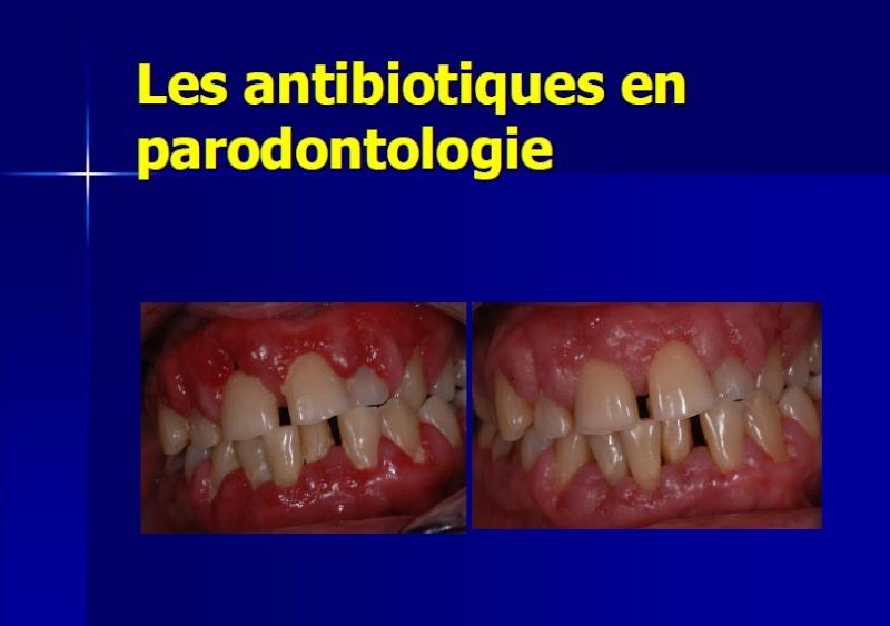 parodontologie - Les antibiotiques en parodontologie Atb10