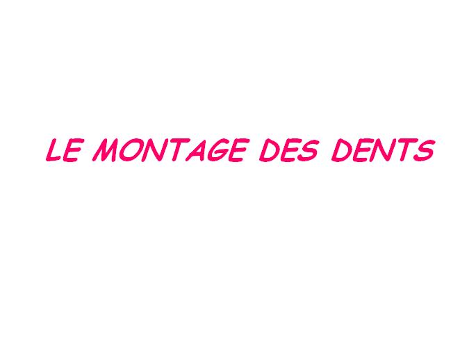 Le montage des dents Montag10