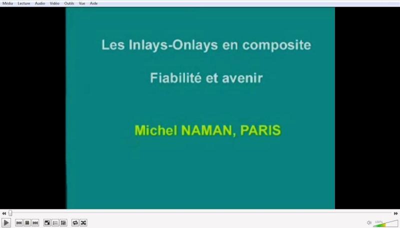 Les inlays-onlays en composite  Onlay10