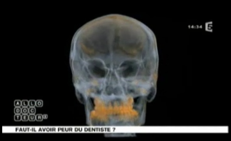 Faut-il avoir peur du Dentiste ?( allo docteur-vidéo ) Peur10