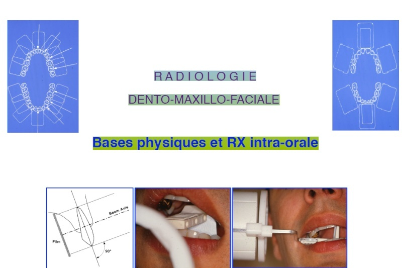 Bases physiques et Radiographie intra-orale  Radiol10
