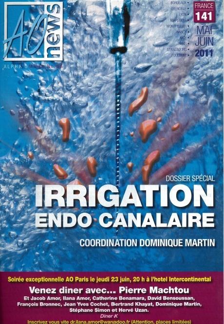 Irrigation endo-canalaire Sans_t13