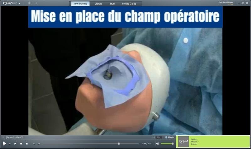 Mise en place du champ opératoire ( La digue ) 2 vidéos Sans_t15