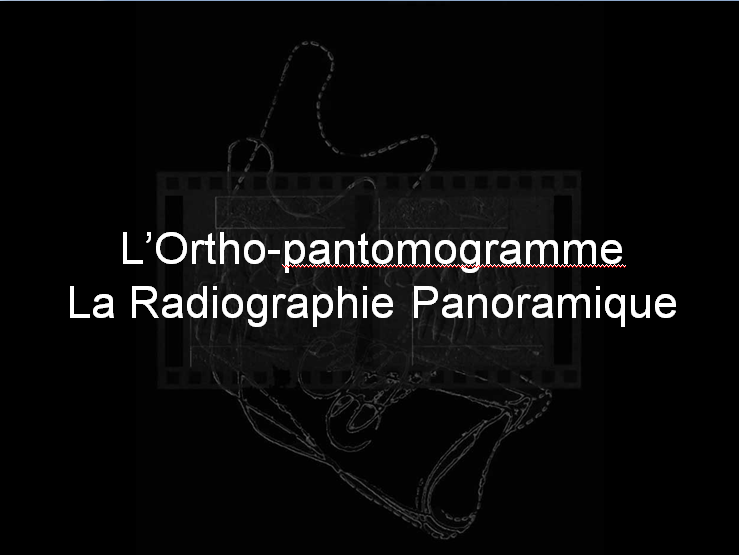 La Radiographie Panoramique Sans_t27