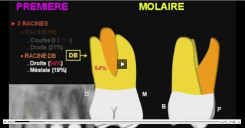 anatomie - anatomie endodontique des molaires maxillaires  Sans_t30