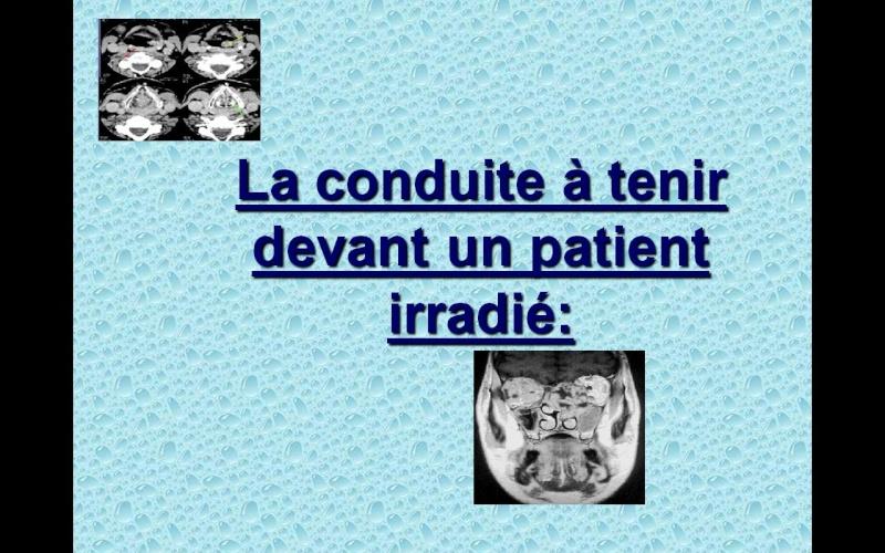 Conduite à tenir devant un patient irradié Sans_t45