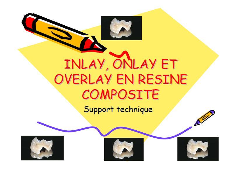 Inlay, onlay et overlay en résine composite Sans_t46