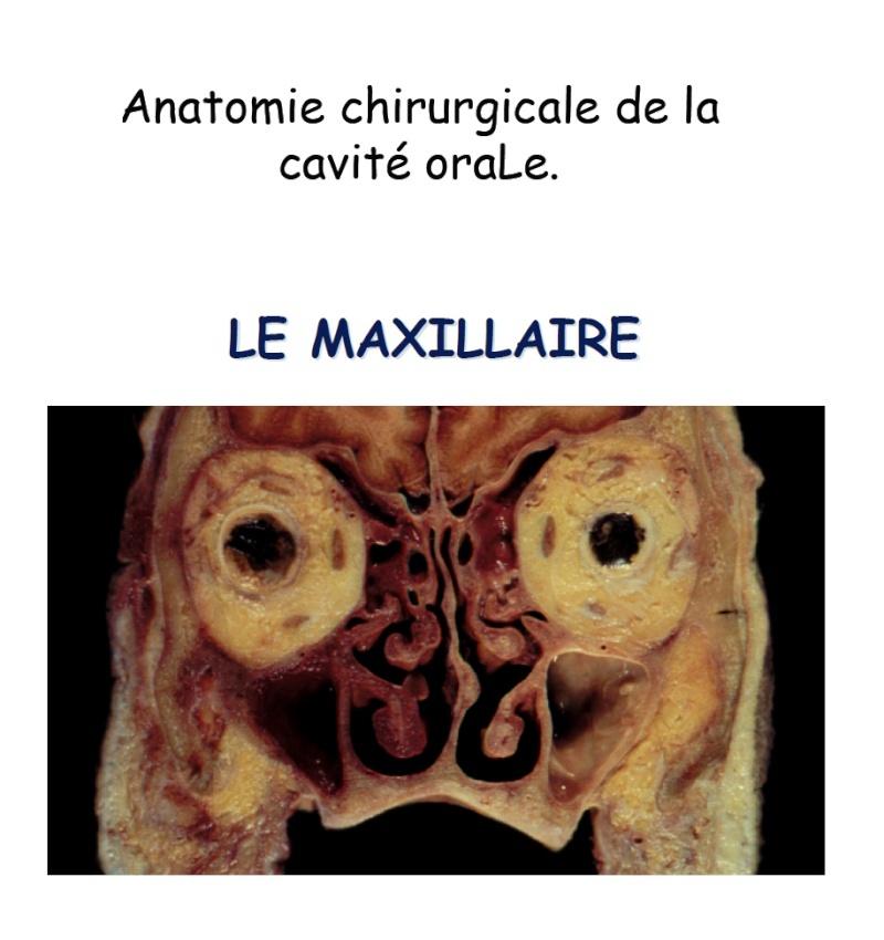 anatomie - Anatomie chirurgicale de la cavité orale : Le Maxillaire Sans_t50