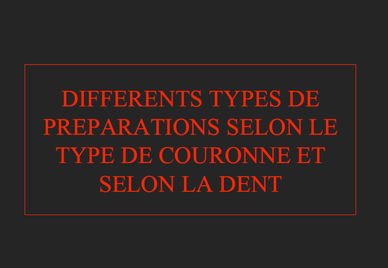 ��dent�� - DIFFERENTS TYPES DE PREPARATIONS SELON LE TYPE DE COURONNE ET SELON LA DENT U10