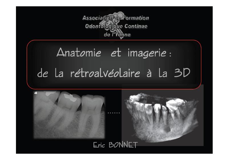 Anatomie et imagerie : de la rétroalvéolaire à la 3D Radio10
